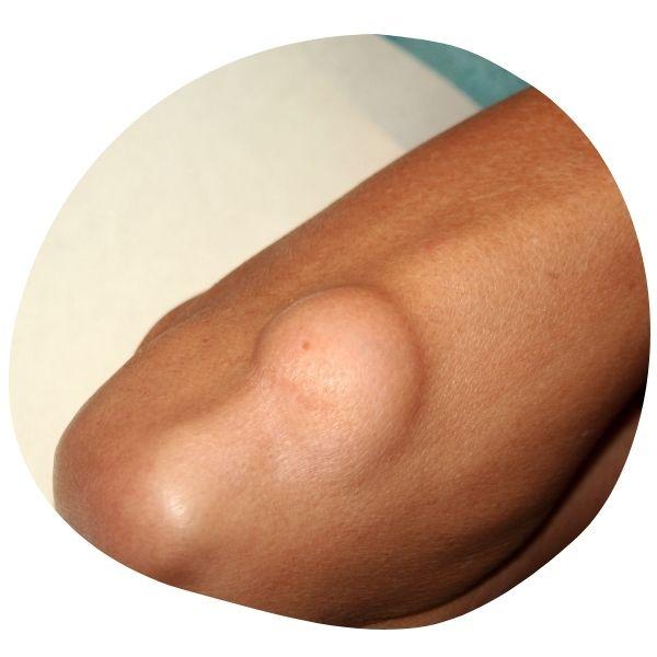 lipoma treatments removal