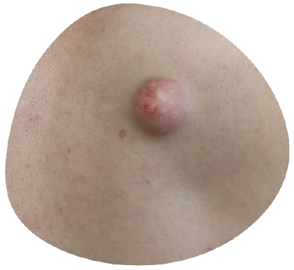 cyst-removal